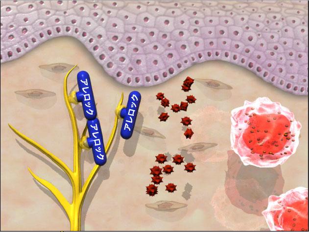 allelock-histamin-float-screenshot